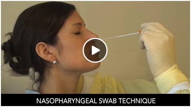 Nasopharyngeal Swab Technique